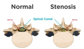 normal-vs-spinal-stenosis-in-vertebrae-01