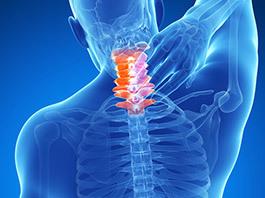 Cervical-Strain-Sprain